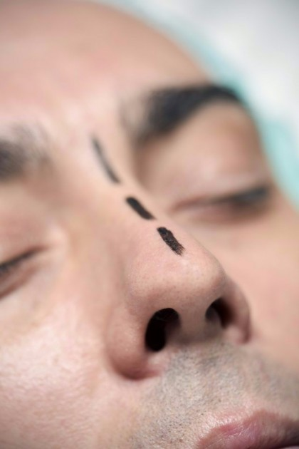 Top Affordable Rhinoplasty Seattle
